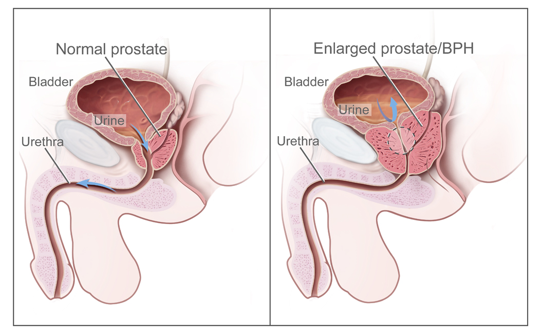 benign prostatic hyperplasia, prostate adenoma