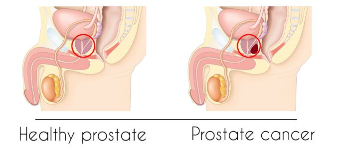 Prostate cancer - News, views, gossip, pictures, video