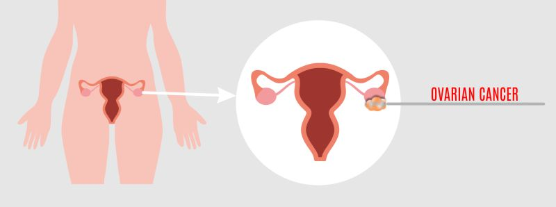 ovarian cancer symptoms, ovarian cancer prevention